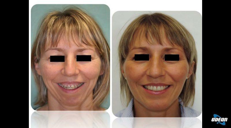 Prof. Aldo Bruno Giannì (Chirurgia del viso personalizzata)